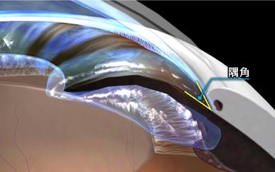 瞳孔ブロックのイメージ