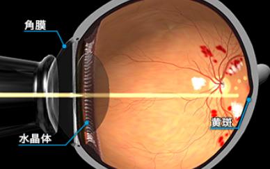 糖尿病網膜症のレーザー照射イメージ