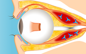甲状腺眼症のイメージ